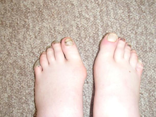 Vita ochs vällda fötter